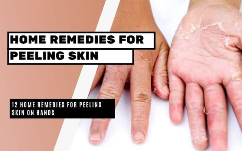 12 Home Remedies for Peeling Skin on Hands