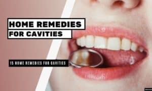 15 Home Remedies for Cavities