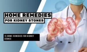 15 Home Remedies for Kidney Stones